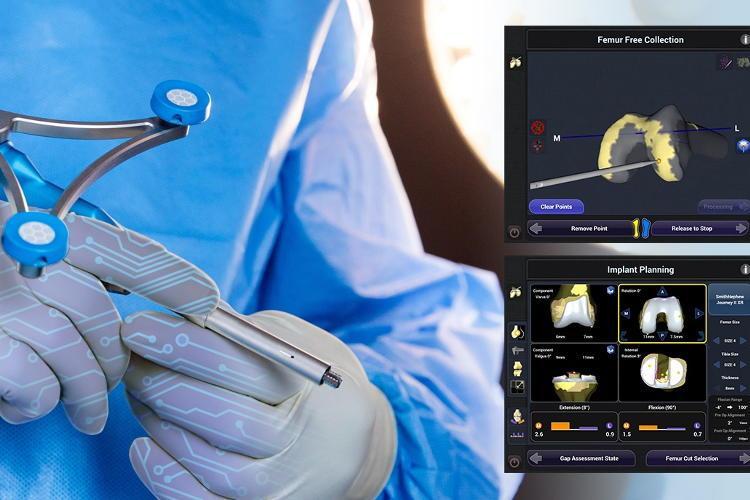 protesi di ginocchio innovative e con il robot