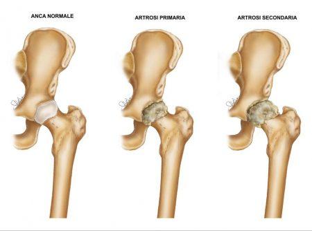 Fig. 1 Confronto tra anca normale, anca affetta da artrosi primaria e secondaria (molto più deformata e difficile da trattare).