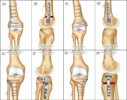 Fig. 2 Vari tipio di ostetomie eseguibili a carico del ginocchio. 2a-2b, osteotomia femorale laterale in apertura; 2c-2d osteotomia femorale mediale in chiusura; 2e-2f, osteotomia tibiale laterale in chiusura; 2g-h, osteotomia tibiale mediale in apertura.